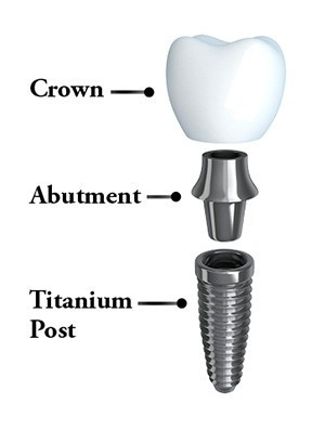 Diagram showing the three parts of an implant - post, abutment, and crown.