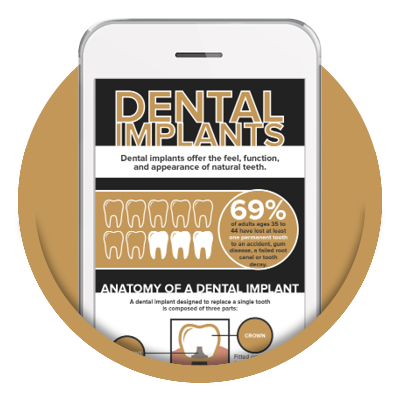 Preview of our FREE infographic about dental implants which one of our cosmetic dentistry options in Savannah