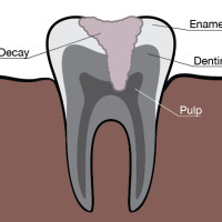 Illustration of tooth, gums, roots