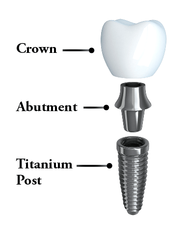 Diagram showing the three parts of a dental implant - post, abutment, and crown.